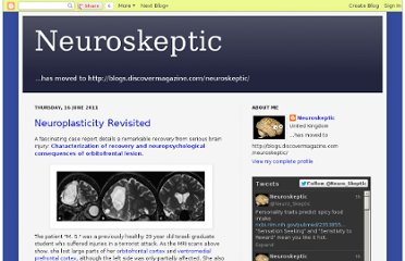 http://neuroskeptic.blogspot.com/2011/06/neuroplasticity-revisited.html