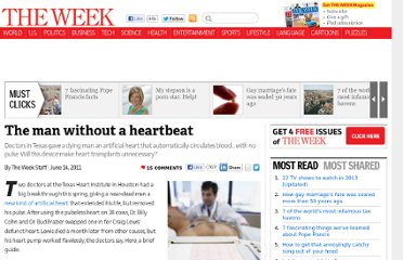 http://theweek.com/article/index/216275/the-man-without-a-heartbeat