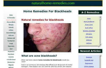 http://www.naturalhome-remedies.com/home-remedies-for-blackheads.html