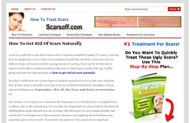 http://www.scarsoff.com/how-to-get-rid-of-scars-naturally/