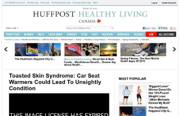 http://www.huffingtonpost.com/2012/02/24/toasted-skin-syndrome-car-seat-warmers-erythema-ab-igne_n_1300210.html