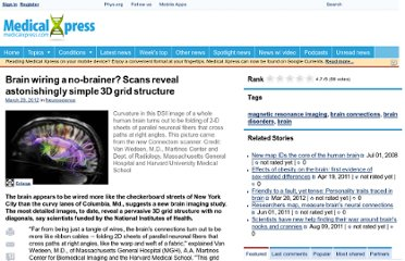 http://medicalxpress.com/news/2012-03-brain-wiring-no-brainer-scans-reveal.html