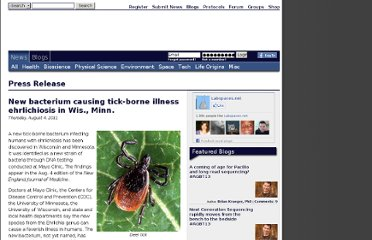 http://www.labspaces.net/112352/New_bacterium_causing_tick_borne_illness_ehrlichiosis_in_Wis___Minn_