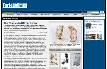 http://www.forteantimes.com/features/articles/148/the_twoheaded_boy_of_bengal.html
