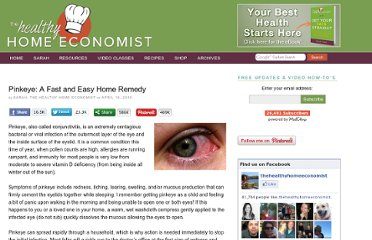 http://www.thehealthyhomeeconomist.com/pinkeye-fast-and-easy-home-remedy/