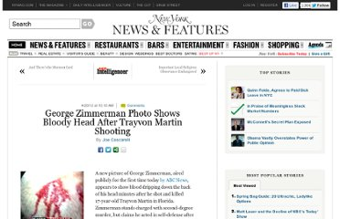 http://nymag.com/daily/intelligencer/2012/04/george-zimmerman-picture-bloody-head-trayon-martin-shooting.html